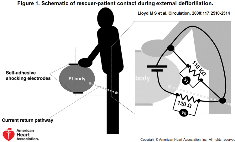 Schematic-of-rescuer-patient-contact-during-external-defibrillation